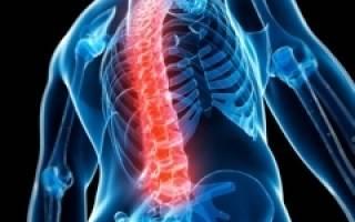 Межпозвонковая грыжа симптомы