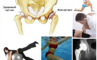 Лечебная гимнастика при коксартрозе