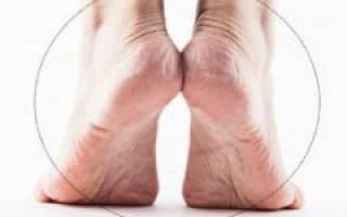 Болит стопа посередине при ходьбе