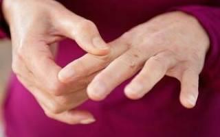 Болит палец на руке при сгибании