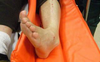 Лечение перелома лодыжки без смещения