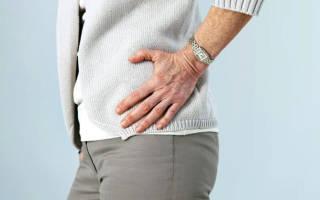 Заболевания тазобедренного сустава у женщин лечение