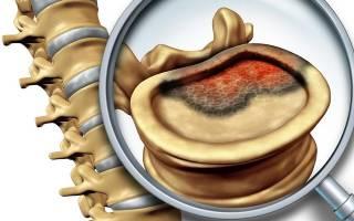 Онкология позвоночника симптомы