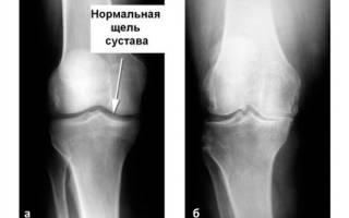 Остеоартроз коленного сустава 1 степени лечение