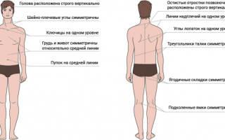 Лечение сколиоза у подростков