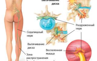 Лечение защемления седалищного нерва препараты