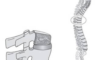 Гиперкифоз грудного отдела позвоночника