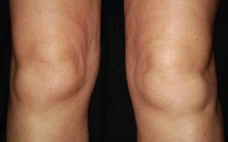 Отек коленного сустава причины лечение