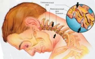 Лечение хондроза шейного отдела позвоночника