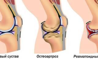 Ревматоидный артрит причины возникновения