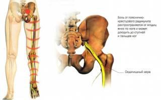 Лечение радикулита поясничного медикаментами уколами