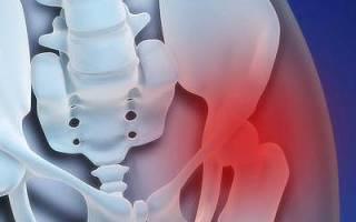 Трохантерит тазобедренного сустава лечение народными средствами отзывы