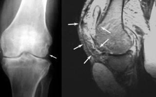 Туберкулез костей и суставов симптомы