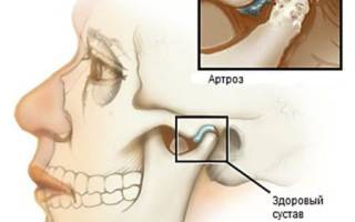 Артроз челюстно лицевого сустава симптомы и лечение