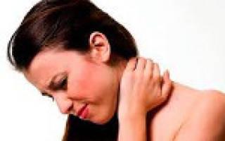 Шейный миозит симптомы