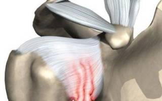 Реабилитация при плечелопаточном периартрите
