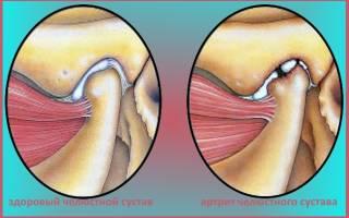 Челюстно лицевой сустав лечение