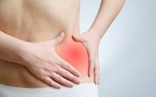 Транзиторный синовит тазобедренного сустава у детей