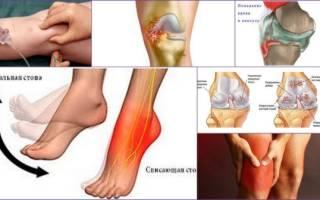 Удаление жидкости из коленного сустава