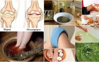 Лечение остеоартроза народными средствами