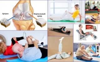 Гимнастика для коленных суставов доктора бубновского
