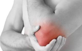 Лечение эпикондилита локтевого сустава в домашних условиях