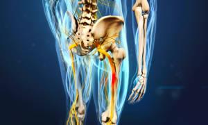 Защемление седалищного нерва симптомы и лечение