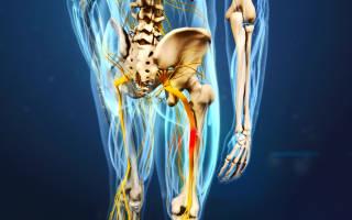 Симптомы защемления седалищного нерва позвоночника