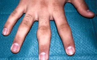 Сустав пальца на руке опух и болит