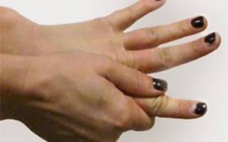 Болит указательный палец правой руки