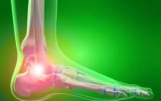 Боль при ходьбе в голеностопном суставе