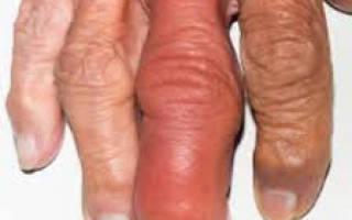 Септический артрит симптомы